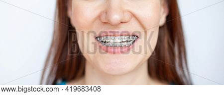 The Woman Smiles, Showing Her White Teeth With Braces. Even Teeth From Wearing Braces. The Concept O