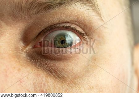 Red And Inflamed Eye Close-up. Patient's Red Eye. Allergic Reaction