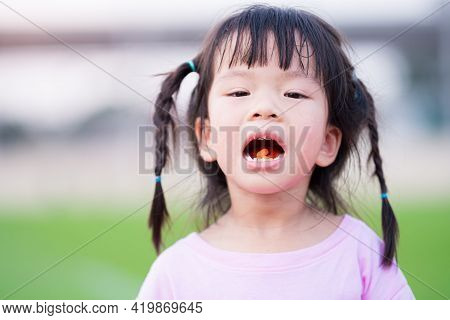 Cute Asian Girl Has Dry And Peeling Lips. Children Eat Vitamin C Orange Color. Child Opened His Mout