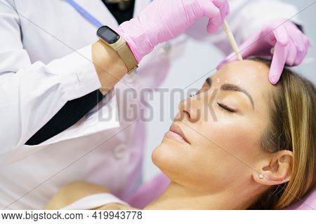 Aesthetic Doctor Painting On The Face Of His Patient The Areas To Be Treated With Botulinum Toxin.
