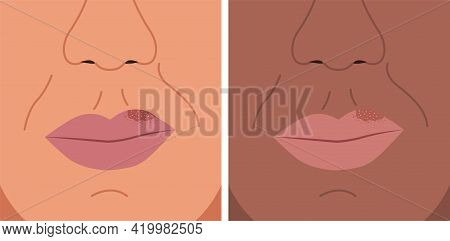 Vector Illustration Of Herpes On The Lip, Cold Sore, Herpes Simplex.