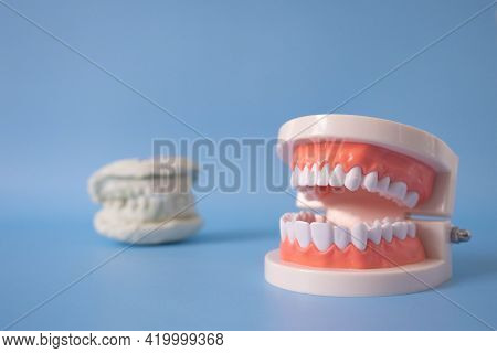 Close Up Plastic Human Teeth Model And The Plaster Tooth Model Placed On The Blue Background. Dental