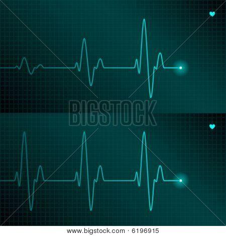 ECG tracing. Vector.