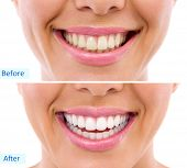 whitening - bleaching treatment ,before and after ,woman teeth and smile, close up, isolated on white  poster