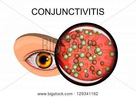 illustration of a healthy eye the patient with conjunctivitis and styes