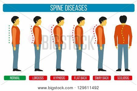Body posture defect. Vector infographics of spine diseases. Scoliosis and lordosis medical diagrams. Spine backbone, spine diagnosis, diagnostic spine symptom, design spine diseases illustration poster