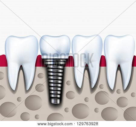 Anatomy of healthy teeth and dental implant in jaw bone. Healthy concept illustration. Stomatology vector