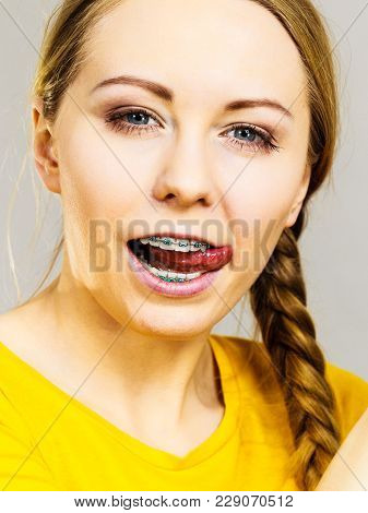 Happy Teenage Woman With Braces On Teeth Sticking Her Tongue Out Being Funny And Childish