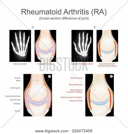 Rheumatoid Arthritis Is A Chronic Inflammatory Disorder That Can Affect More Than Just Your Joints.