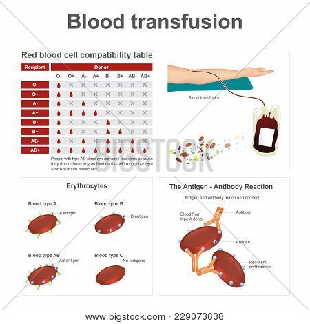 There Are Two Special Blood Types When It Comes To Blood Transfusions. Info Graphic.