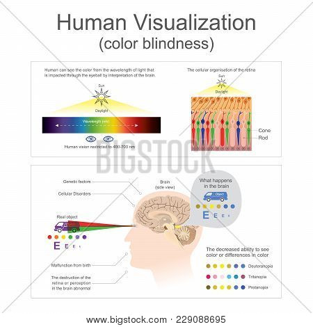 Human Can See The Color From Wavelength Of Light The Destruction Of The Retina Or Perception In The