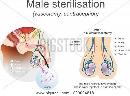 The Male Reproductive System These Work Together To Produce Sperm. Cut Or Block The Tubes So That Eg