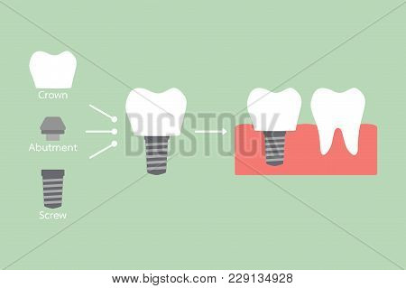 Structure Of The Dental Implant With All Parts Disassembled, Crown, Abutment, Screw - Compare With S