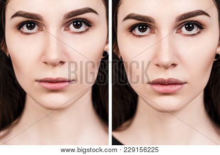 Beautiful Lips Of Young Woman. Before And After Lips Filler Injections. Fillers Concept.