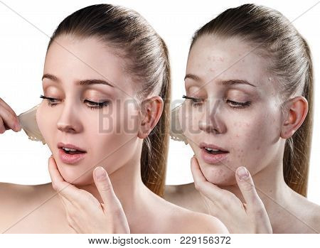 Beautiful Woman Remove Her Old Dry Skin From Face. Before And After Treatment, . Isolated On White.