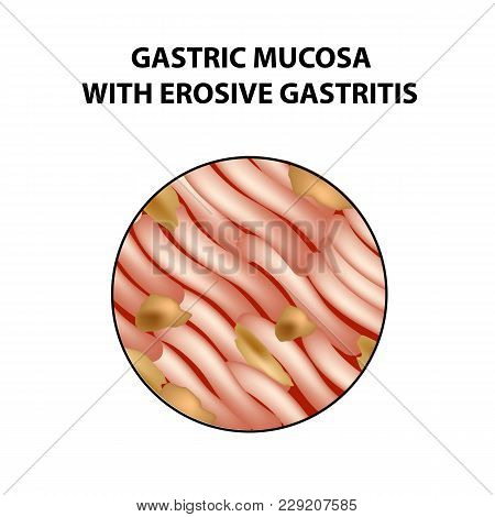 Mucous Stomach With Erosive Gastritis. Infographics. Vector Illustration On Isolated Background.