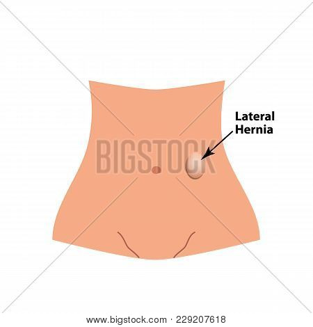 Lateral Herniation. Intestinal Hernia. Infographics. Vector Illustration On Isolated Background