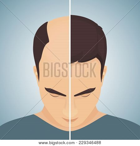 Front View Portrait Of A Man With Alopecia Before And After Hair Treatment And Transplantation. Divi