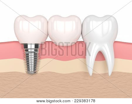 3D Render Of Implant With Dental Cantilever Bridge