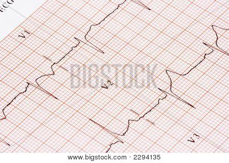 Ekg Chart