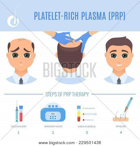 Platelet Rich Plasma Injection Procedure. Prp Therapy Process For Men. Male Hair Loss Treatment Info
