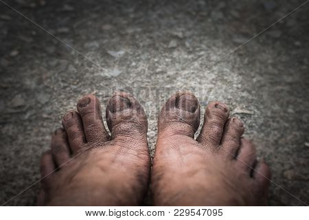 This Dirty Feet. Old And Ugly On The Cement Floor. In The Dark Tone And Dismal Mood.