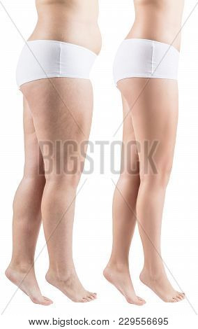 Side View On Woman's Legs Before And After Slimming.