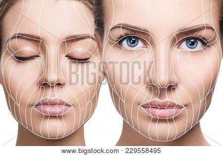 Collage Of Face Lift Anti-aging Lines On Young Female Face. Graphic Lines Showing Facial Lifting Eff