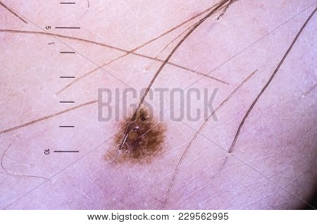 Enlarged Image Of The Skin And Moles Of A Man With A Dermatoscope With A Millimeter Scale.