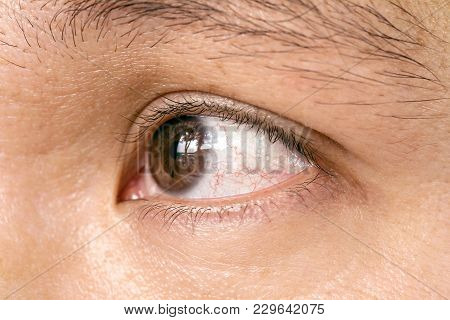 Red Eye Of Man With Red Capillary, Conjunctivitis Pupil Eye