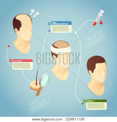 Hair Transplantation Isometric Vector Illustration With Description Surgery Procedure Of Restore Hai