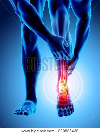 Ankle Painful - Skeleton X-ray, 3d Illustration Medical Concept.