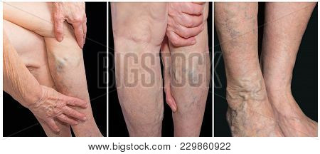 Painful Varicose Veins, ,spider Veins, Varices On A Female Leg. Ageing, Old Age Disease, Aesthetic P