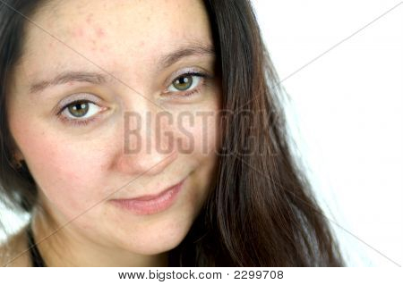 Portrait Of Woman With Problem Skin