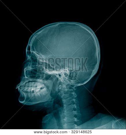 Cervical Spine Spondylosis