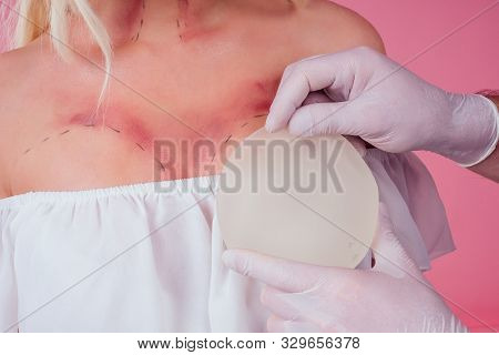 Flawless Face Of Young Beautiful Blonde Long Hair Patient Woman And Doctor Surgery Consulting About