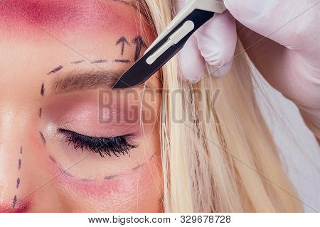 Pretty Blonde Barbie Woman In Medical Beauticians Hands With Syringes Making Botox Injection In Her