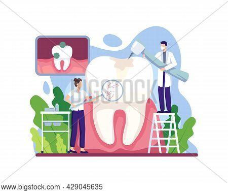 Caries Treatment Illustration