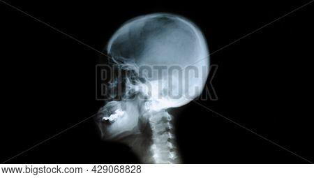 X-ray Film Of The Head, Child's Skull.