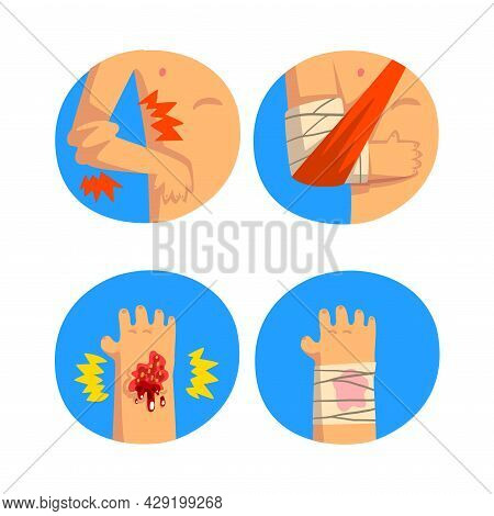 First Aid For Wounded Arm And Hand In Blue Circle Vector Set