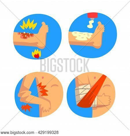 First Aid For Wounded Arm And Leg In Blue Circle Vector Set
