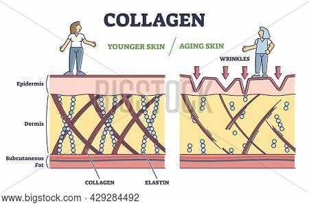 Collagen Effect As Younger Or Aging Skin In Anatomical View Outline Diagram. Labeled Educational Ski