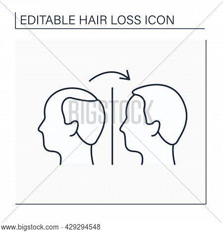 Treatment Line Icon. Hair Transplantation, Medicines And Special Diet. Hair Loss Treat. Alopecia Con