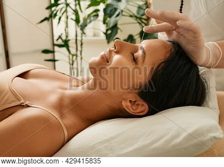 Reflexologist Inserts Acupuncture Needles Into Acupuncture Point On Female Head For Headaches Treatm