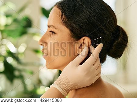 Woman Having Ear Acupressure Or Ear Acupuncture For Her Diseases Treatment, Side View. Acupuncture,