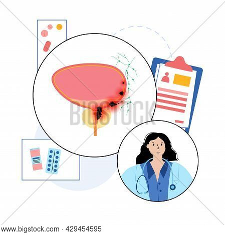 Bladder Cancer Stages. Doctors Consultation And Treatment In Clinic. Bladder, Urethra, Lymph Nodes A