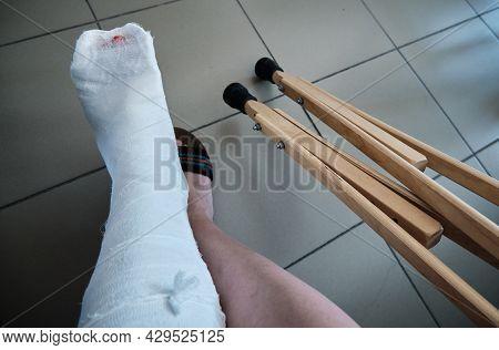Leg In A Plaster Bondage Close-up, Orthopedic Crutches. Leg Injury. Loss Of Mobility. Rehabilitation