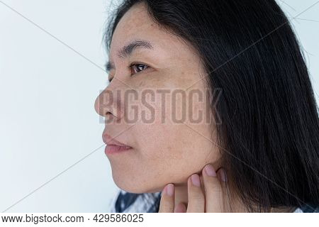 Close Up Of Asian Adult Woman Face Has Freckles, Large Pores, Blackhead Pimple And Scars Problem Fro
