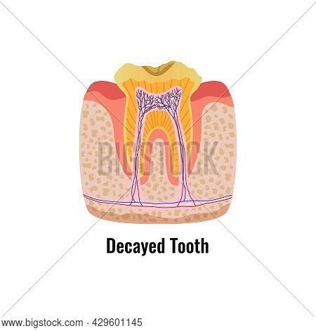 Flat Poster With Decayed Tooth Anatomy Vector Illustration