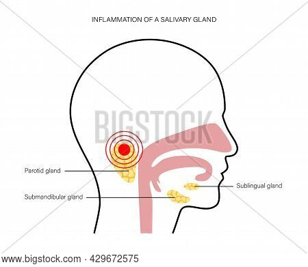Inflammation Of A Salivary Glands In Human Mouth. Parotid, Submandibular, And Sublingual Gland. Prod